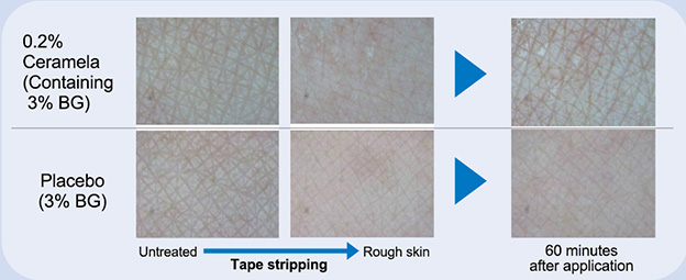 Destroyed texture due to rough skin is repaired shortly after the application of Ceramela.
