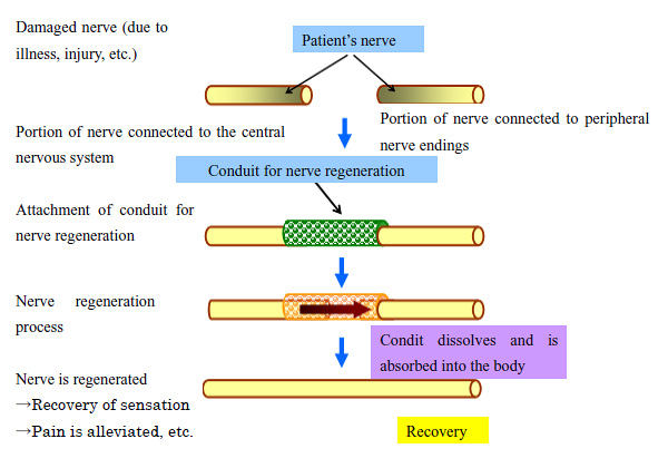 Process of Treatment Using Conduits for Nerve Regeneration (schematic diagram)